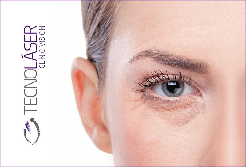 oculoplastia_sevilla3