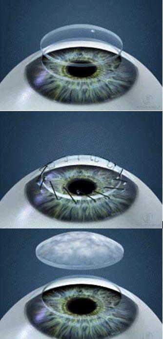 transplante de cornea