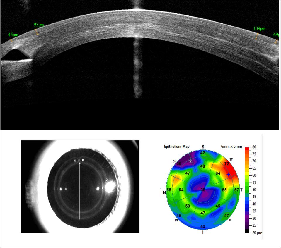 Imagen OCT para Segmentos de anillos intracorneales