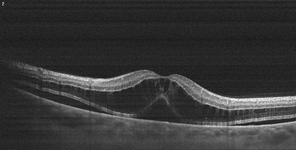 Imagen OCT de retina con edema